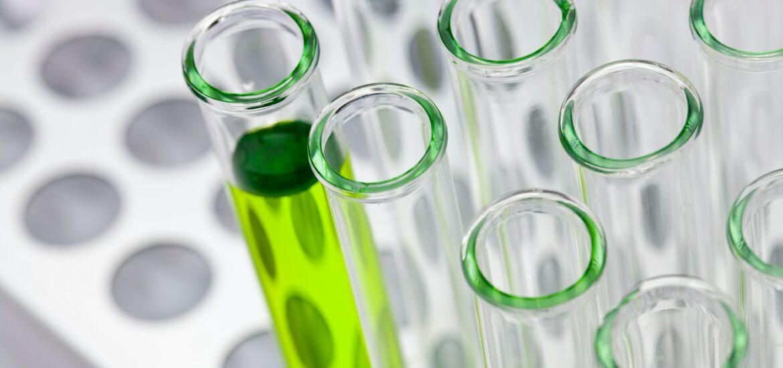 Fialette in vetro di cui una piena di una soluzione verde fosforescente